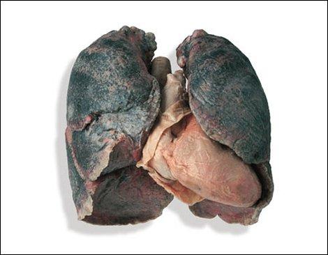 A smoker's lungs. | MU Science Blog